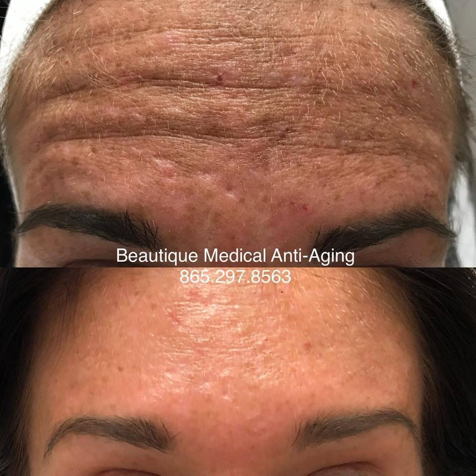 botox-29