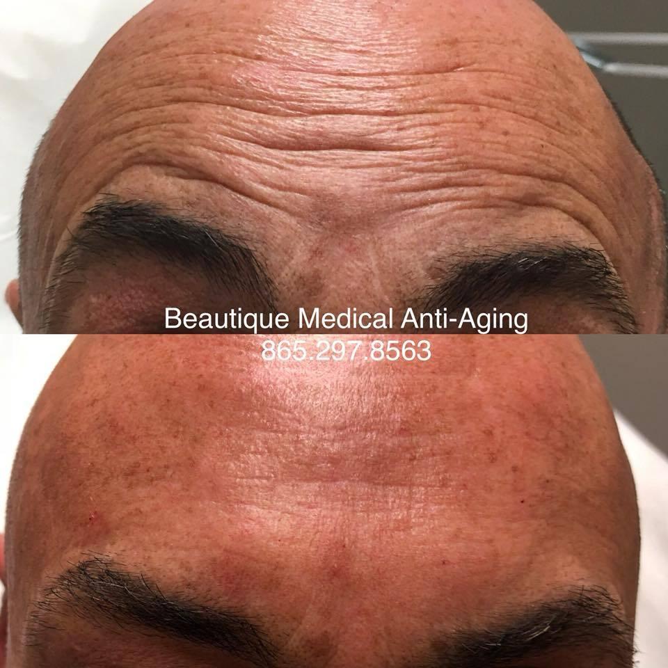 botox-46