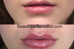 lips-47