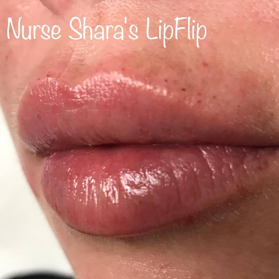 DS_041_Lips-1