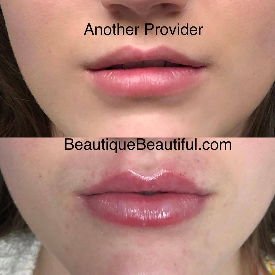 DS_048_Lips-1