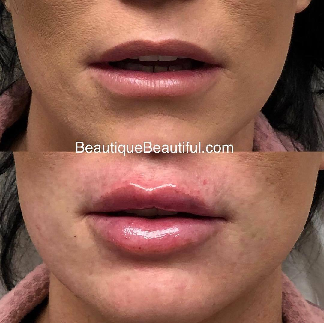 DS_048_Lips-2