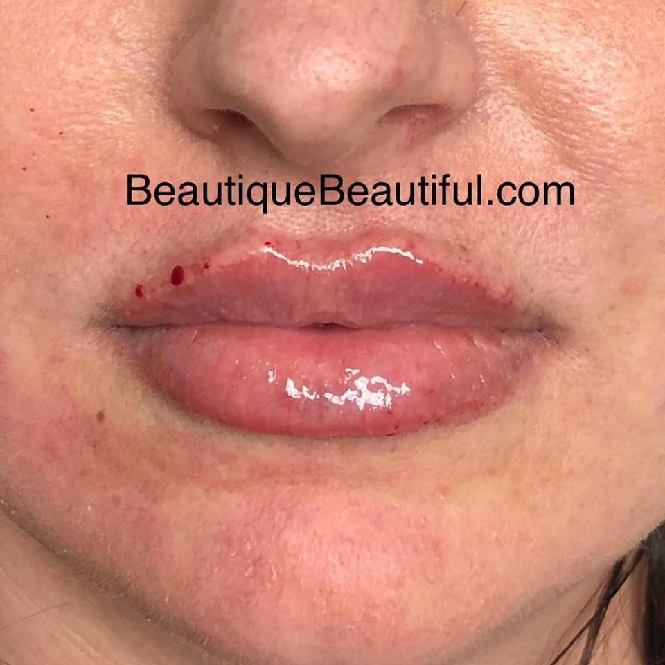 DS_081_Lips-1