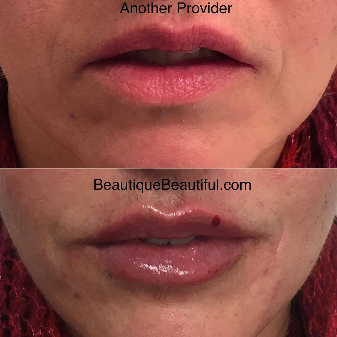 DS_081_Lips-2
