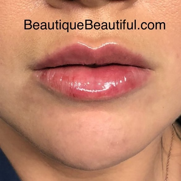 DS_096_Lips-1