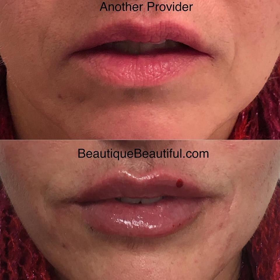 DS_096_Lips-2