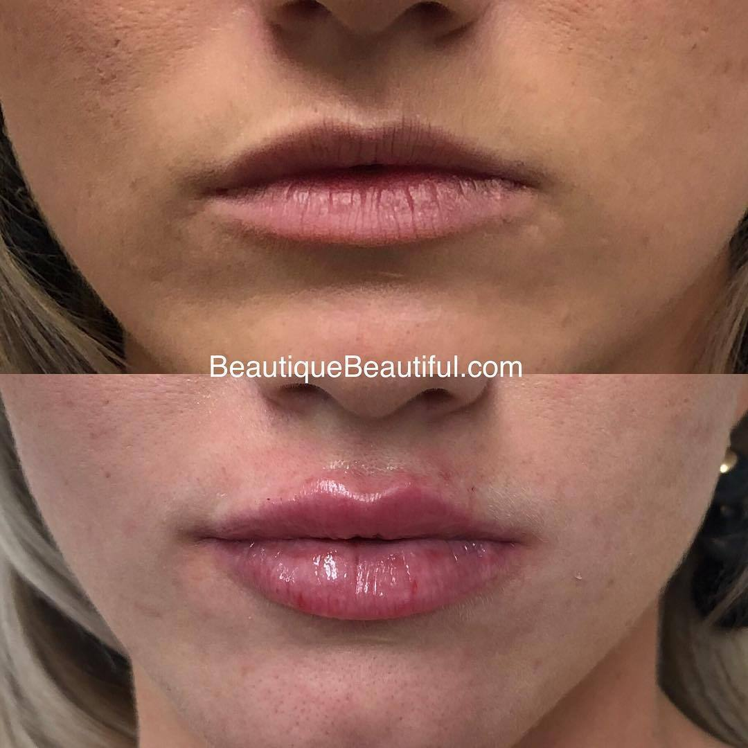 DS_101_Lips-2