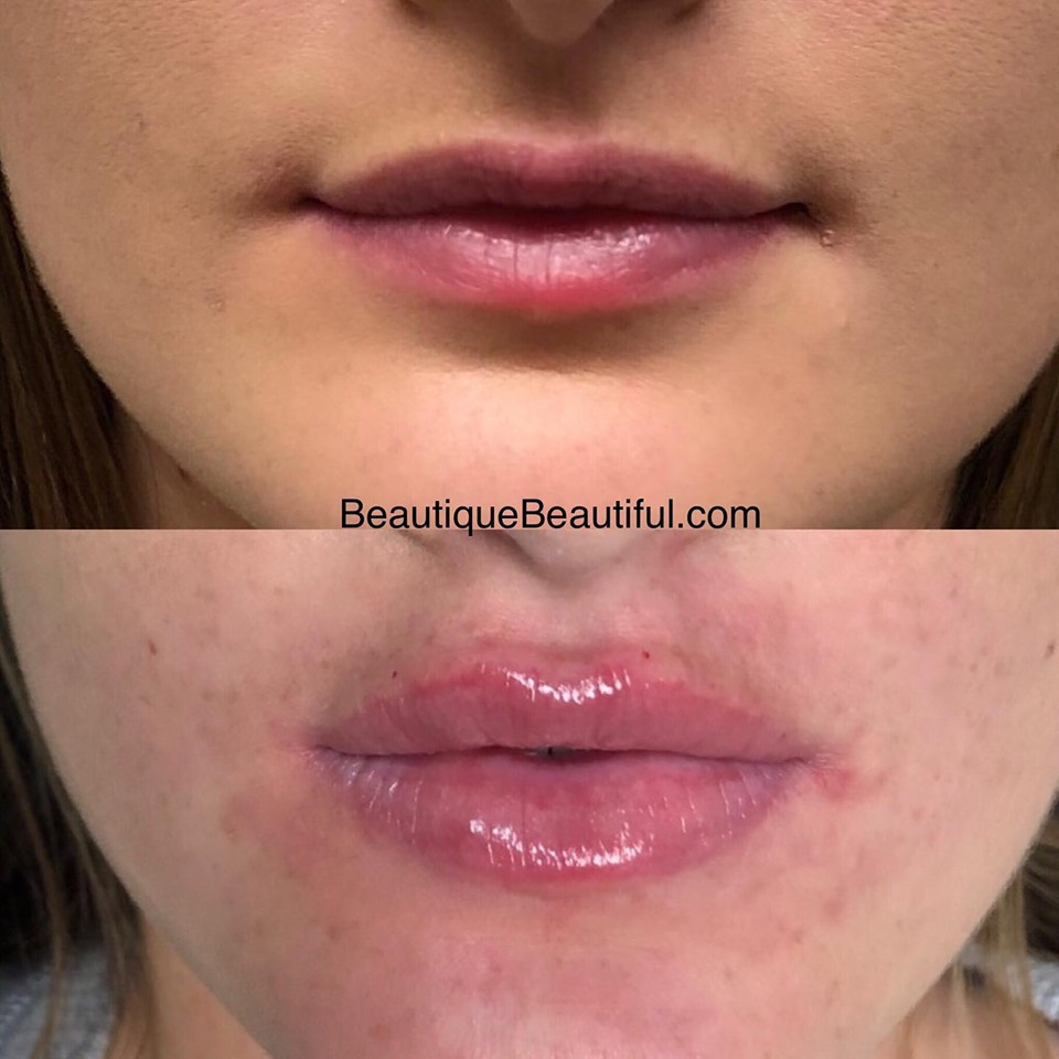 DS_112_Lips-1