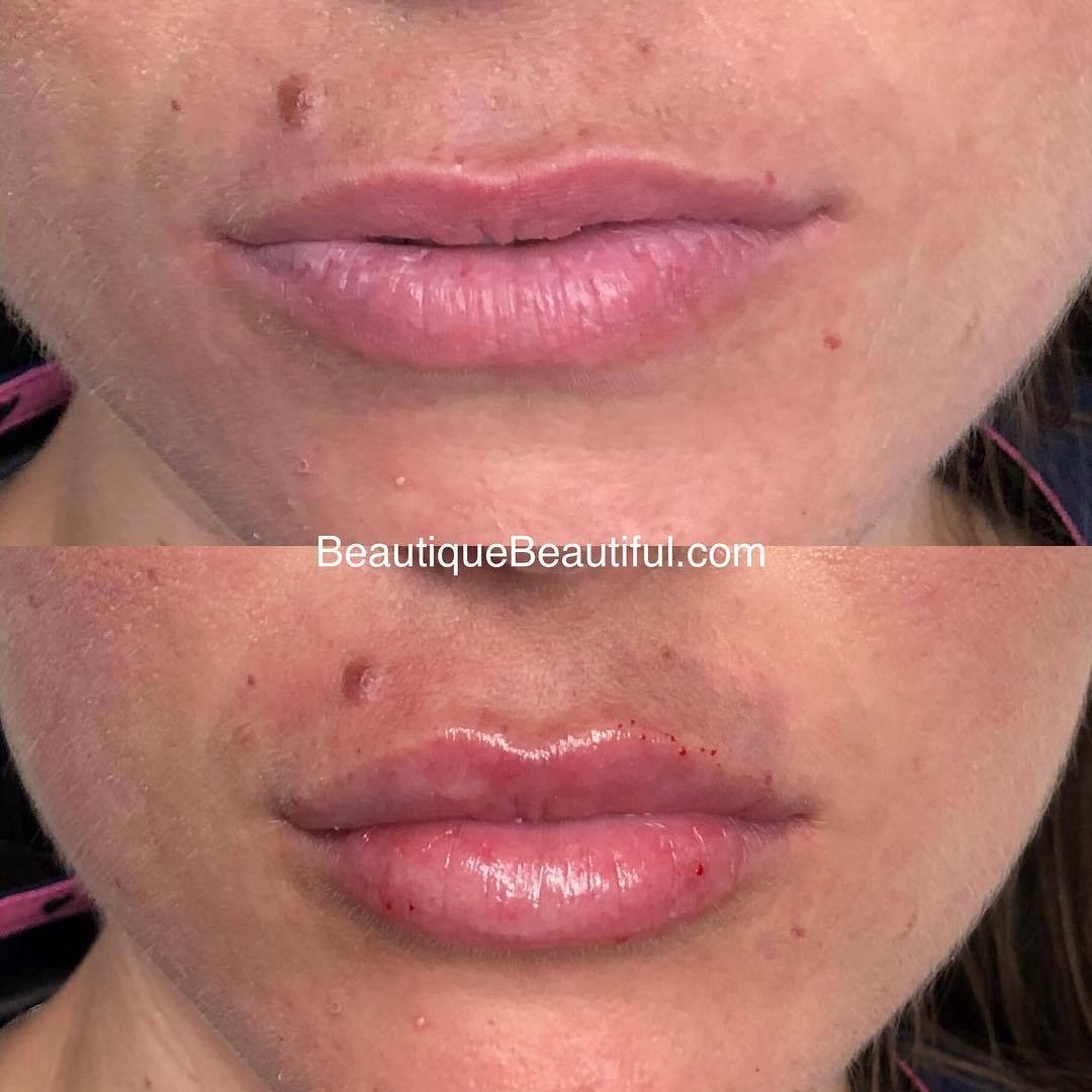 DS_112_Lips-2