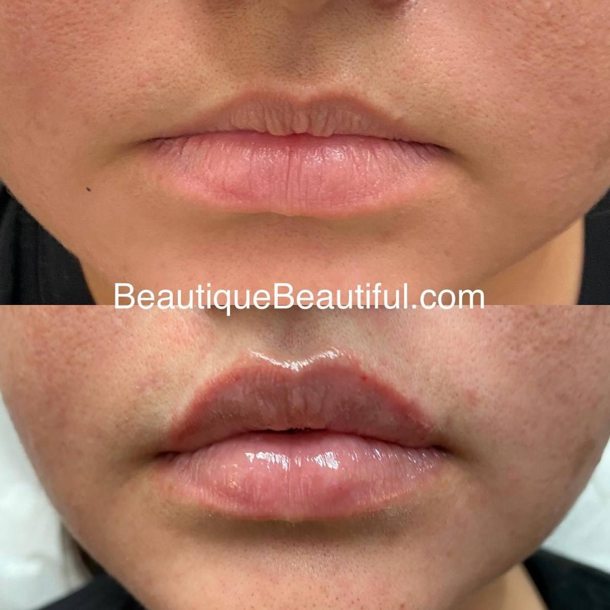 Lips_008