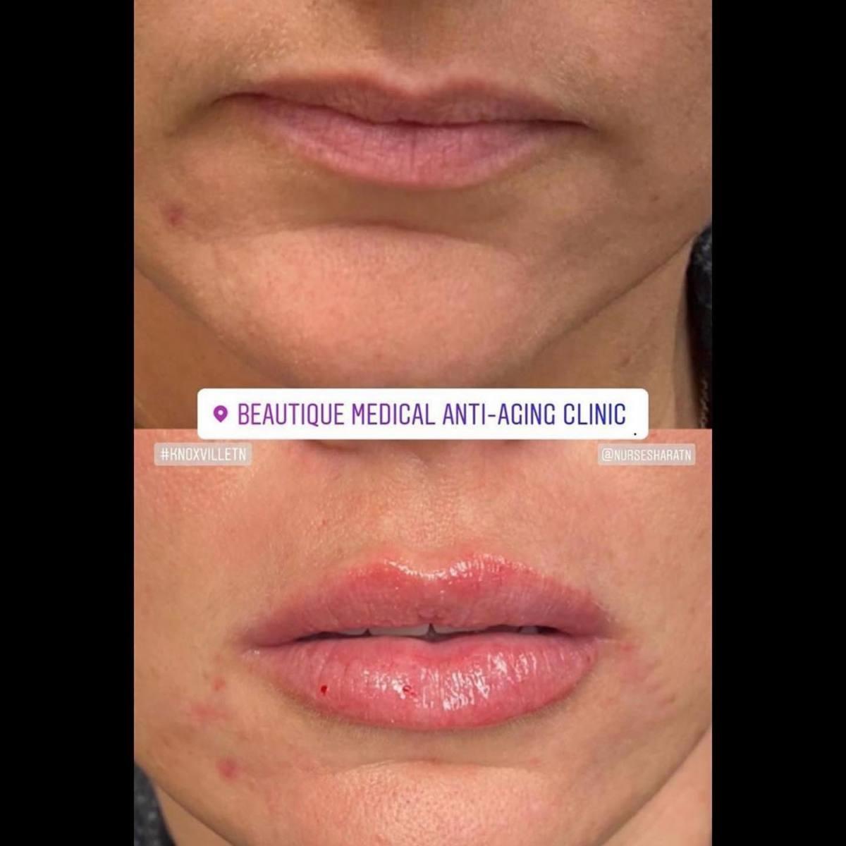 Lips_011