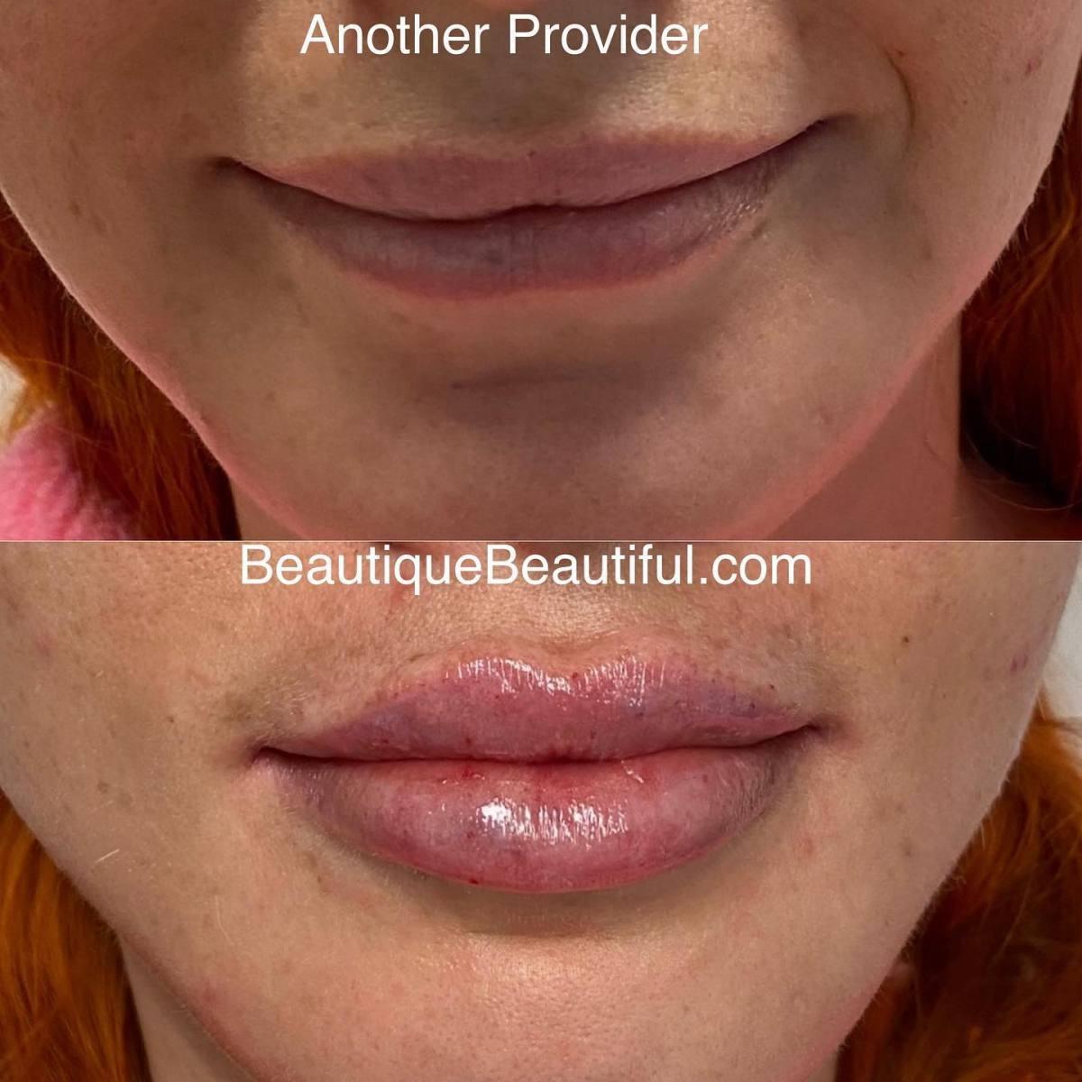 Lips_012