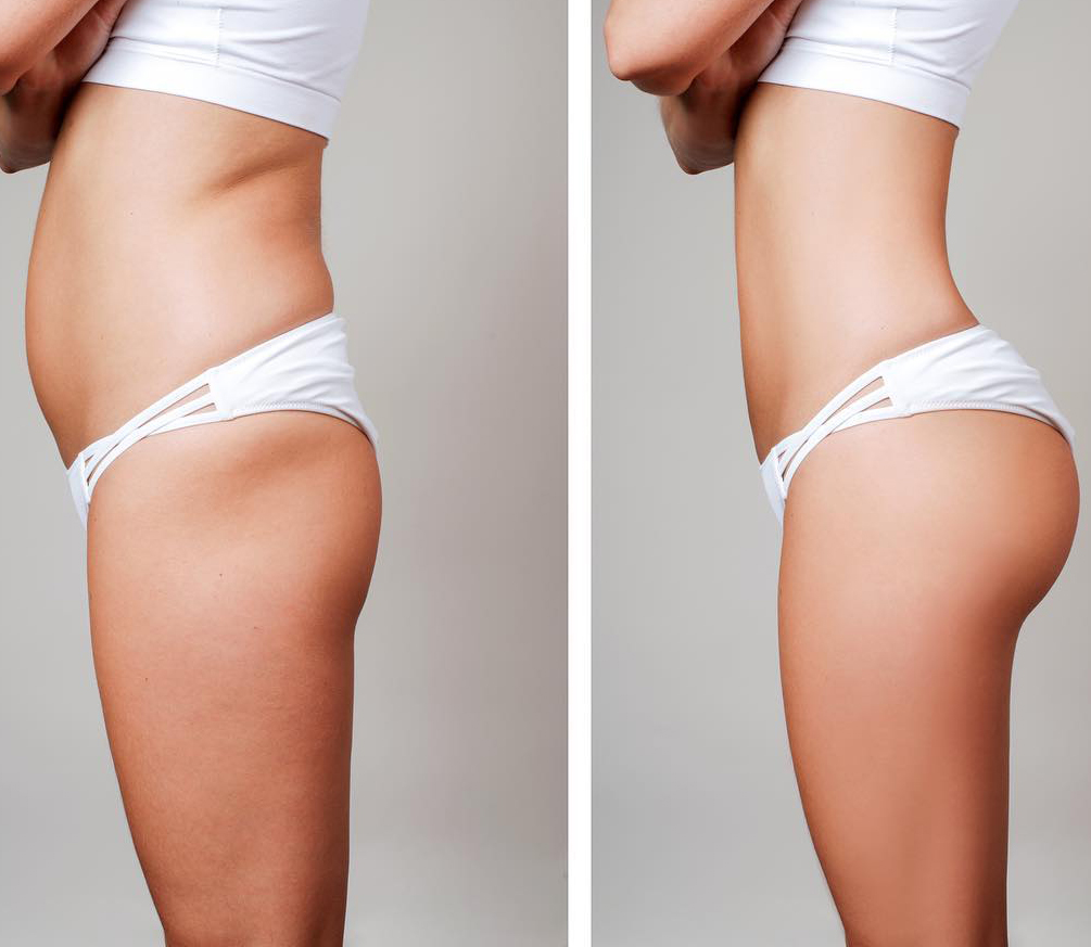 Sculptra Aesthetic: Non-Surgical BBL, Hip Dip, and Butt Dent