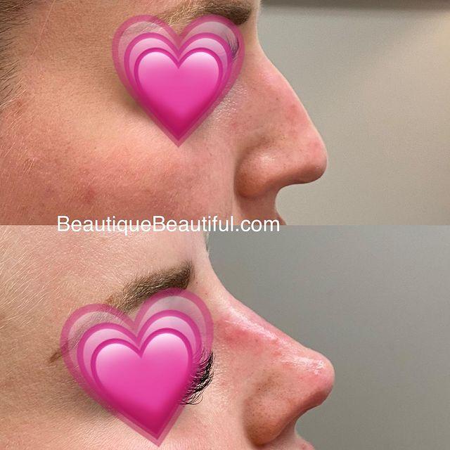 Non-Surgical Nose Job
